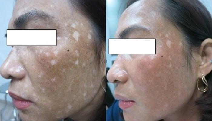 Trị nám bằng lá trầu không làm mất sắc tố da